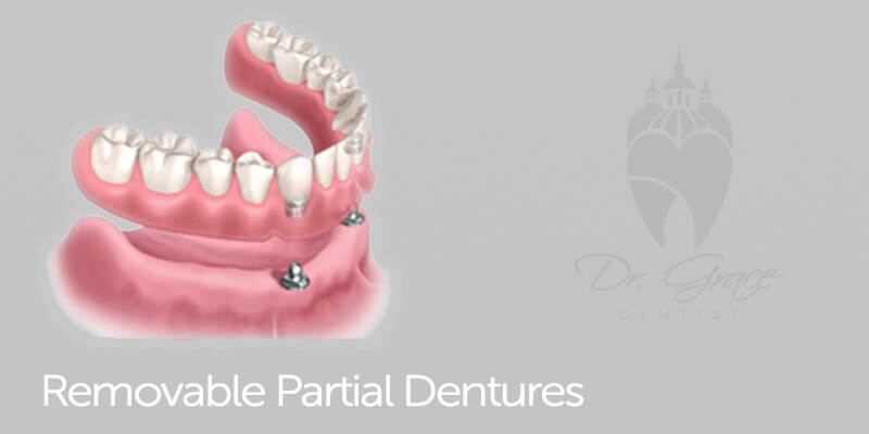 Restorative & Prosthetic Dentistry 3