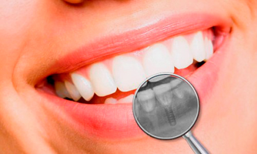 English speaking dentist in Cuenca 11