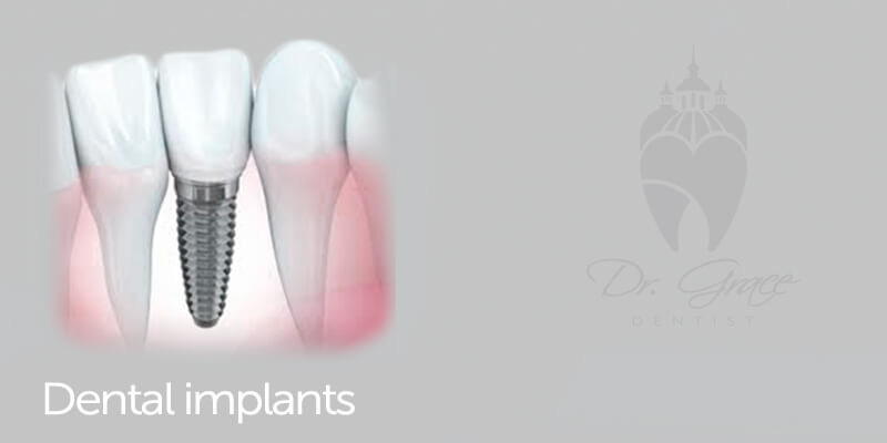Dental Implants 1