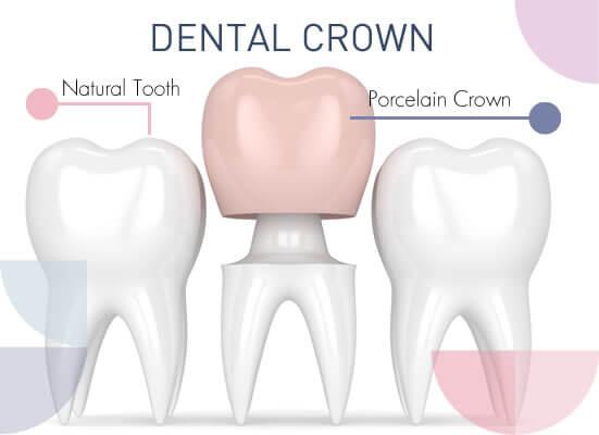 Dental Crown and Tooth Bridges 1
